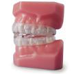 dentiste david côté orthèse dentaire gatineau hull aylmer