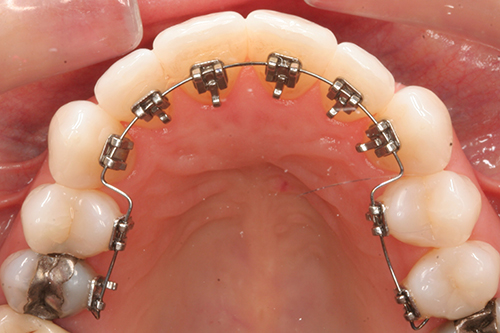 orthodontie-broches-linguales-adulte-adolescent-gatineau