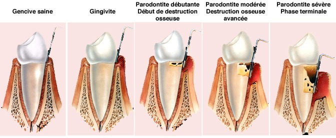 infections-fongiques-decay-gingivitis-parodontitis
