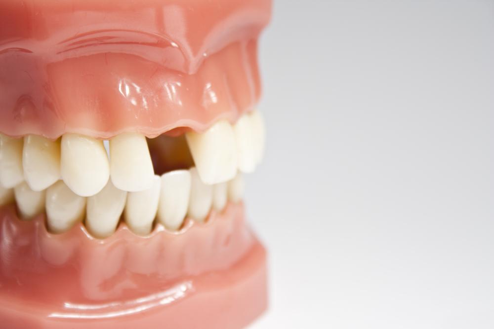 L'importance de remplacer une dent manquante