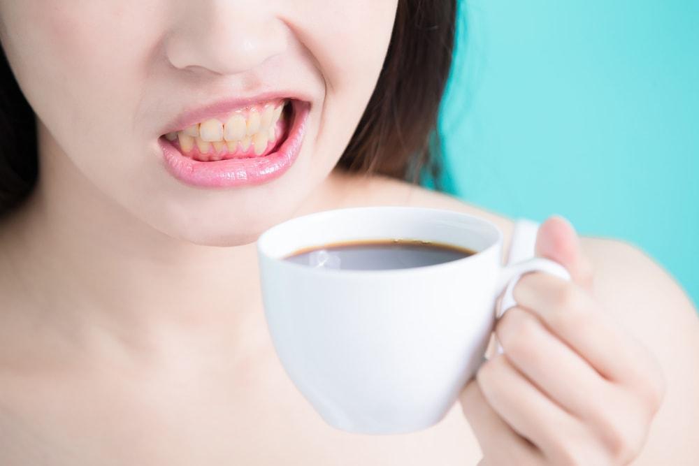 jaunissement des dents