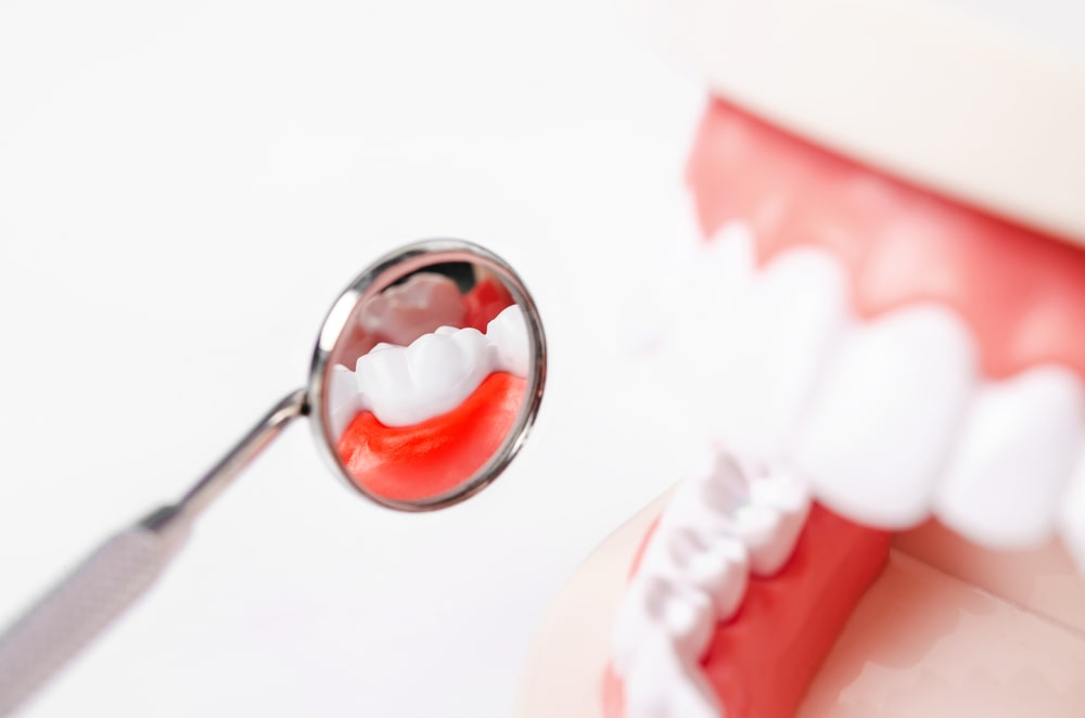 La greffe de gencive est une intervention courante en dentisterie