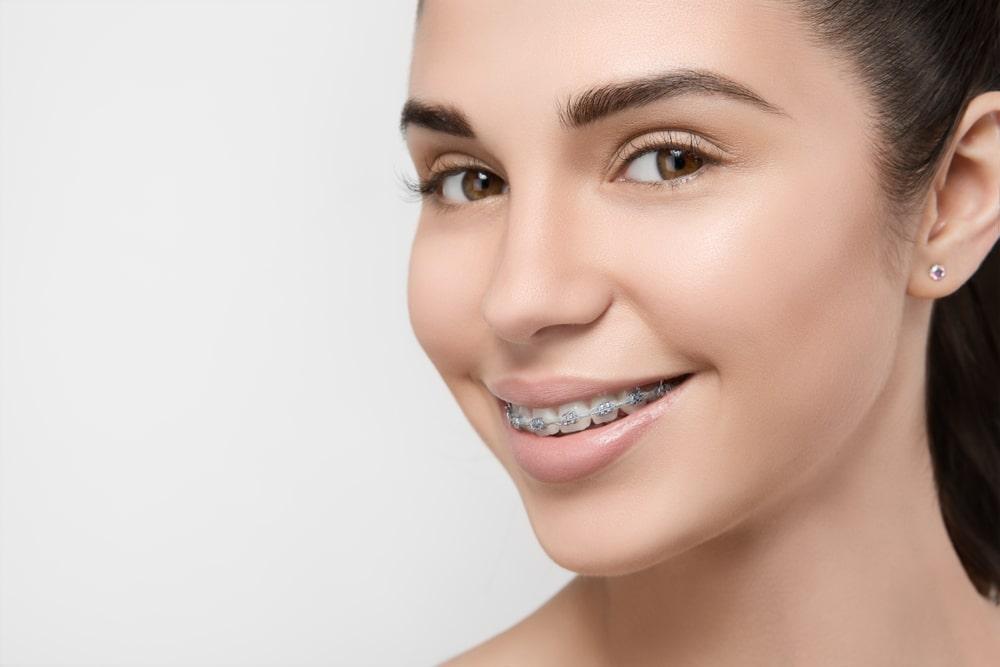 Une jeune fille suit un traitement en orthodontie