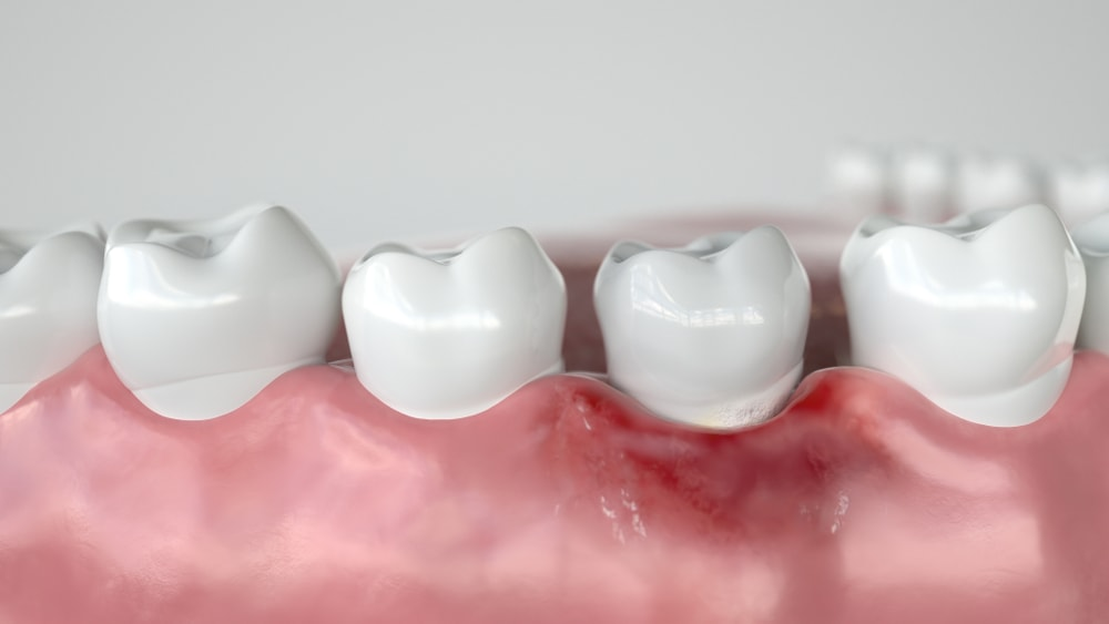 La gingivite entraine des rougeurs aux gencives