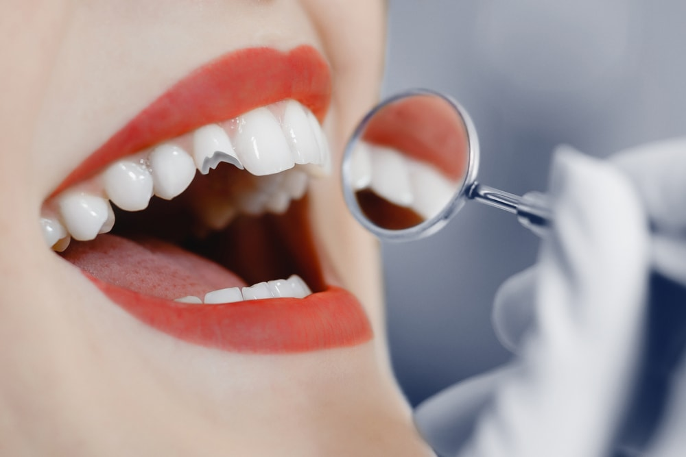 Il faut réagir rapidement avec les urgences dentaires