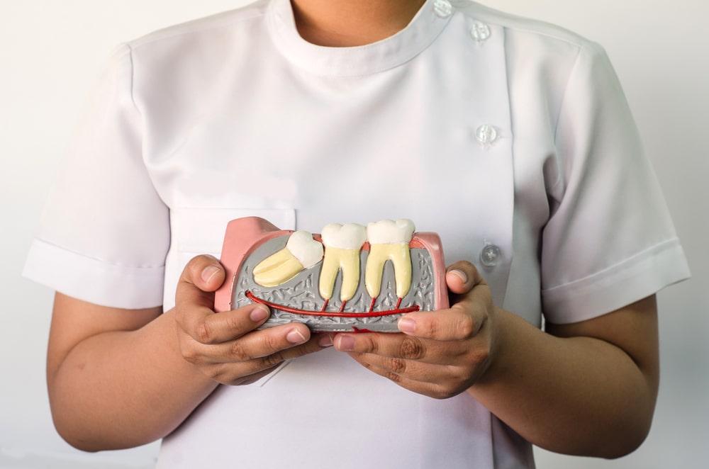Une dentiste tient un modèle de dents de sagesse